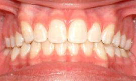 Orthontist Gilbert, San Tan Valley AZ Before and After Photos